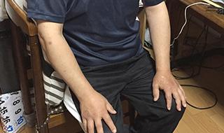 「どん底を味わった」 糖尿病により失明した元トップセールスマン